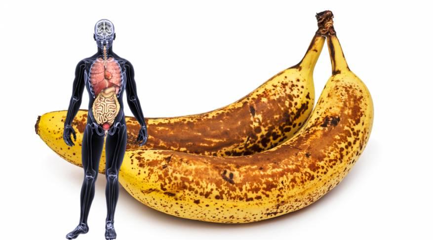 هذه هي العلاقة بين البقع السوداء الموجودة على الموز والسرطان