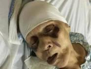 بعد اتهام ابنها بتعذيبها حتى الموت ارضاء لزوجته... اسرة الراحلة توضح جميع التفاصيل