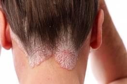 صحة : العدوى أبرز سبب للإصابة بالصدفية