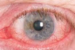 تصفح هاتفه المحمول ليلا ..فأصيب بسرطان العيون