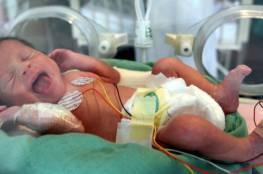 مبكرو الولادة عرضة للإصابة بهذا المرض