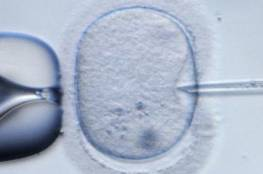 تحديد فرص نجاح عملية الحقن المجهري