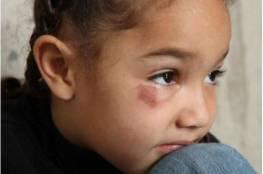 فاجعة في مصر.. 12 شاباً اغتصبوا طفلة معوقّة لمدة 3 أيام... وهكذا انتهت جريمتهم