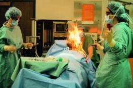 """""""غازات""""معوية لمريضة ..تتسبب بحريق أثناء العملية"""