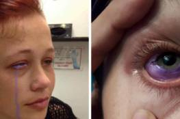 عارضة أزياء تتعرَّض لعمىً جزئيٍّ بسبب وشم العين.. هذه آخر صيحات الموضة وأخطرها