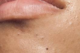 10 عادات خاطئة تضر بجمالك......إياكِ وثقْب الرؤوس السوداء أو تقشير الجلد ليلاً.