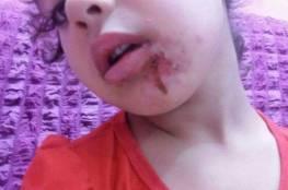 بالصور.. طفلة تعرضت للتعذيب والحرق على يد أقرب الناس!