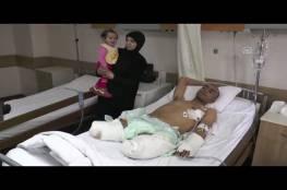 """""""فيديو"""" من حلب بطل ضحى بساقيه لينقذ العشرات من الجحيم"""