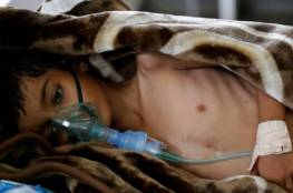 يونيسيف: 3000 إلى 5000 إصابة بالكوليرا في اليمن يوميا