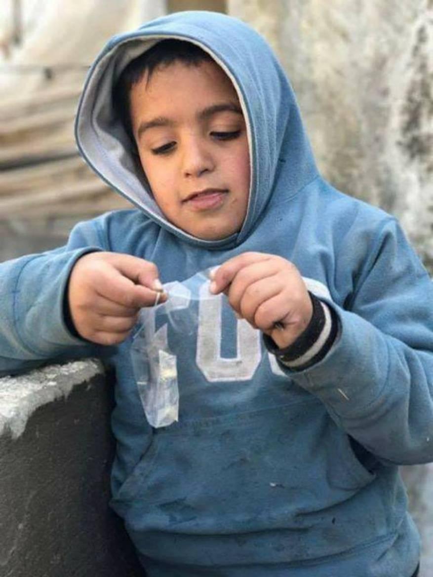 نجاة طفل حاول المستوطنين حرقه في نابلس