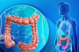 كشف سرطان القولون  على طريقة جديدة بفحص الدهون