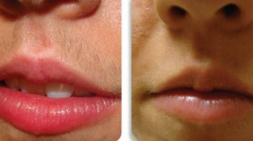 وصفة طبيعية لإزالة الشعر الزائد من الوجه وفوق الشفتين - حديث اليوم