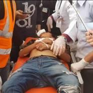 فلسطين : شهيدان وعشرات الإصابات بنيران الاحتلال في قطاع غزة