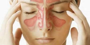 7 طرق لعلاج الصداع طبيعيًا