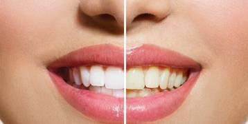 كيف تزيل صفرة الأسنان؟