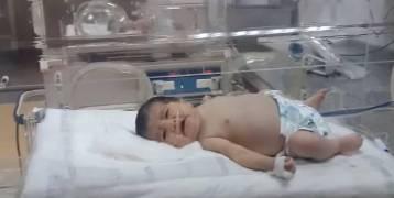 حدث نادر.. استخراج جنين من «بطن رضيعة» عمرها 7 أيام..!