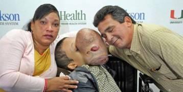 بدأت القصة ببثرة صغيرة على أنفه قبل أن تنمو بحجم الكرة! أطباء يحاولون إزالة ورم ضخم من وجه مراهق قبل أن يقتله