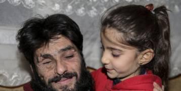 """""""بدي شوف عمو أردوغان"""".. طفلة سورية توجه نداء رسمياً لمقابلة الرئيس التركي وتتمنى معالجة أبيها المصاب"""