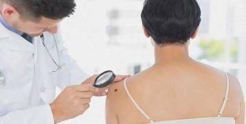 علامات مبكرة للسرطان يتجاهلها 90% من الأشخاص
