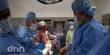 احذري.. الولادة القيصرية تصيب الجنين بهذا المرض الخطير