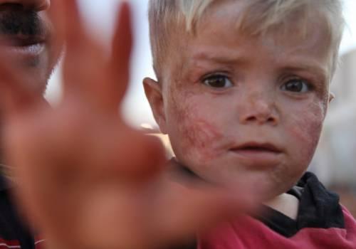 """سوريا : """"من شوه وجه الملائكة ..!! (حالة إنسانية)"""